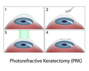 prk eye surgery diagram