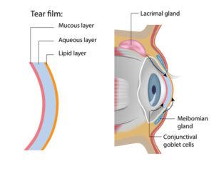 diagram of dry eye